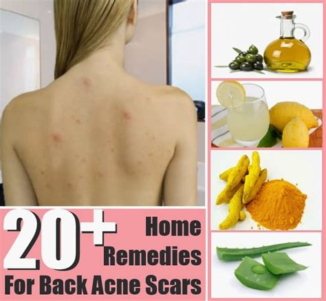 20 top home remedies for back acne scars diy craft projects