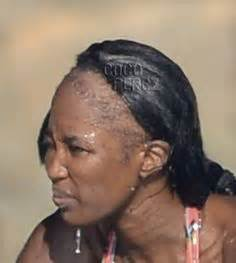 weave styles when you have bald spots 1000 images about hair warnings hair loss on pinterest