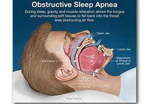 sleep apnea ricky price dds