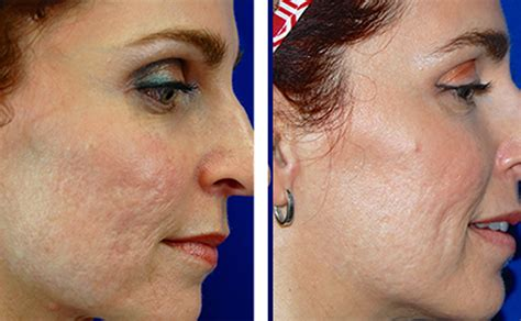 best acne scar treatment laser acne scar removal treatment in richmond va