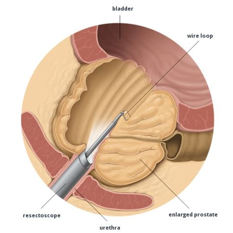 tur p transurethral resection of the turp eau