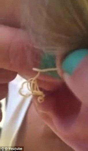Video has surfaced of a girl squeezing a six year old zit on her ear