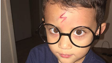 mom turns self conscious son s cut into epic harry potter scar