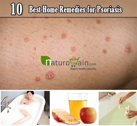 10 simple and best home remedies for psoriasis