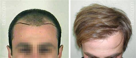 hair of 25 year old r 233 sultats de la greffe de cheveux le stades i iii