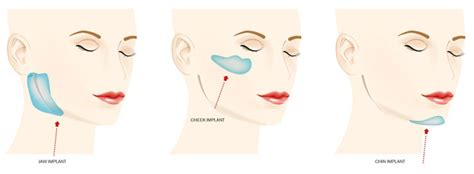 jaw line types facial implants sydney face implants north shore