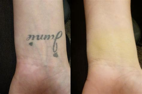cream for tattoos cover up before and after veil cover skin