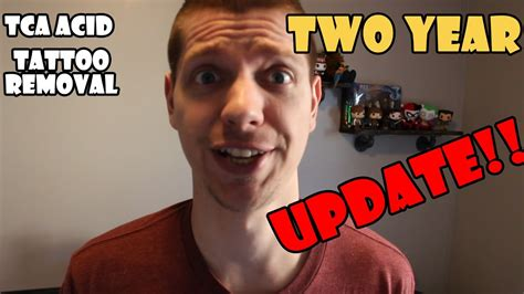 youtube tca tattoo removal tattoo tca removal two year update