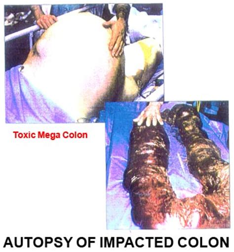 String Fecal Matter Detox by This Is Not Pretty But This Is Why You Need To Detox