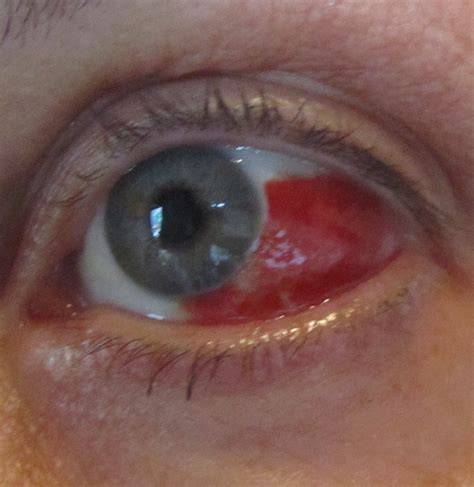blood in s eye my eye is bleeding just in time for the the worrywart s guide to