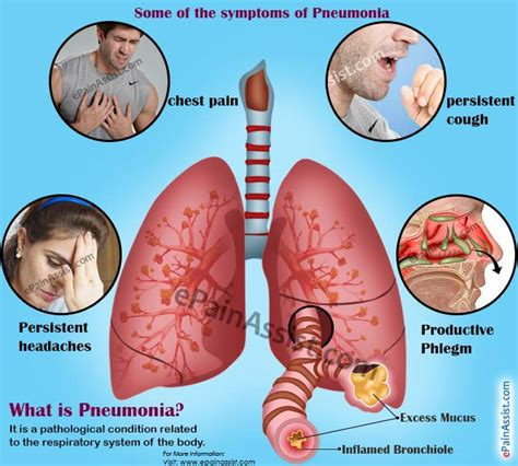 home remedies for walking pneumonia loss of appetite after pneumonia causes home remedies