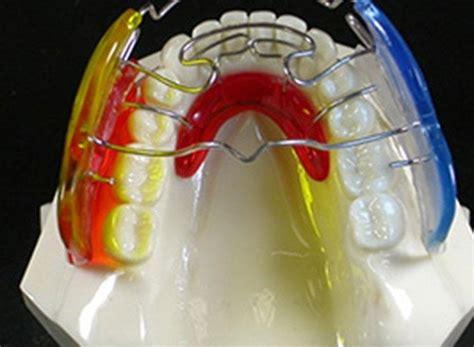 apparecchi mobili denti apparecchi per i denti roma studio dentistico e