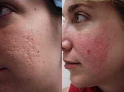 pimples after microdermabrasion doctor answers