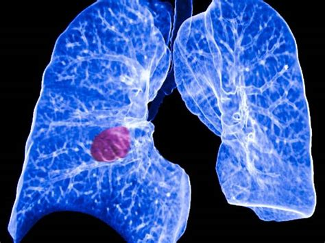 proton therapy lung cancer stage 4 protons destroy centrally located lung cancer