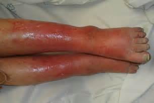Mild cellulitis mild cellulitis