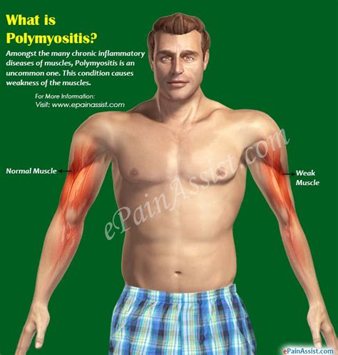 what is st known for what is polymyositis its causes symptoms treatment