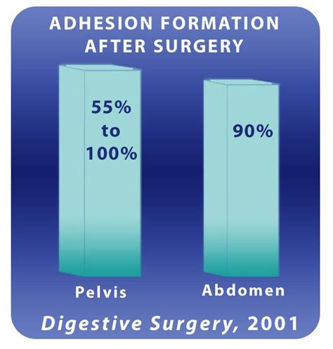 c section adhesion symptoms 93 best images about scars on pinterest magnets