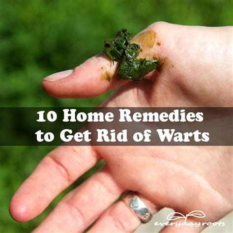 10 home remedies to get rid of warts