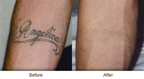 tattoo removal itching topical numbing for laser removal