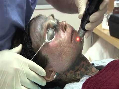 tattoo removal face full face tattoo removal with picosure youtube