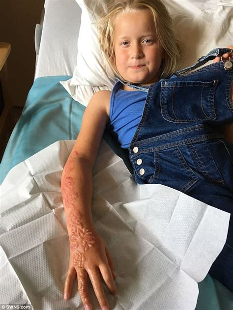 hand tattoo illegal uk girl 7 is left with chemical burns from henna in egypt