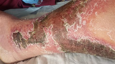 Skin Shedding by Bubbamike S Ramblings Cellulitis Warning Graphic Photos