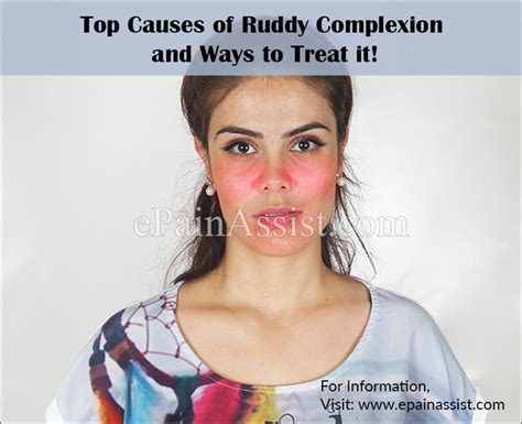 ruddy skin color top causes of ruddy complexion and ways to treat it