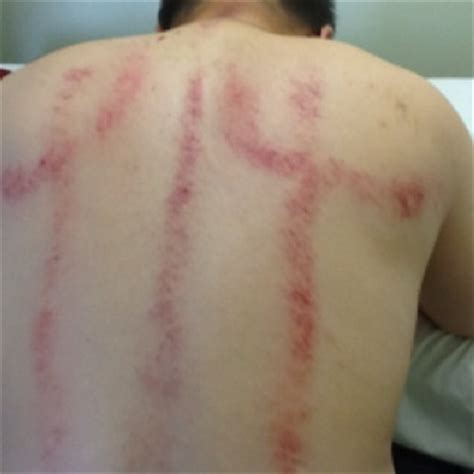 Gua Sha Detox by 17 Best Images About Acupuncture Gua Sha 针灸刮痧 On