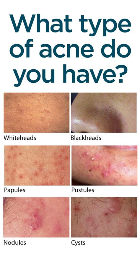 What Skin Type Do You by What Type Of Acne Do You Find Out How The Different