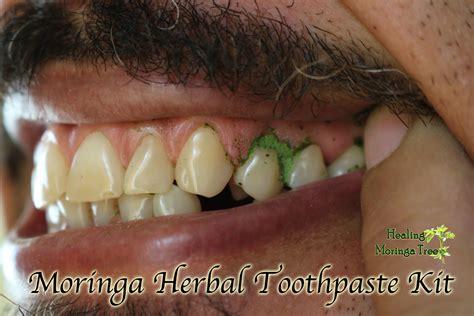 moringa herbal toothpastetooth powder kit
