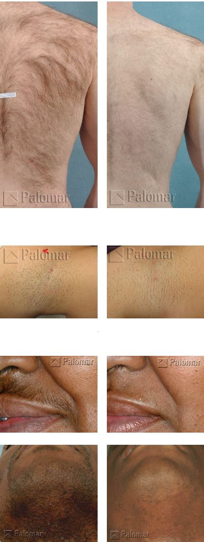 laser tattoo removal gold coast laser hair removal gold coast prices ipl pulsed