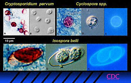 Cyclospora Stool Test by Diagnostic Tests