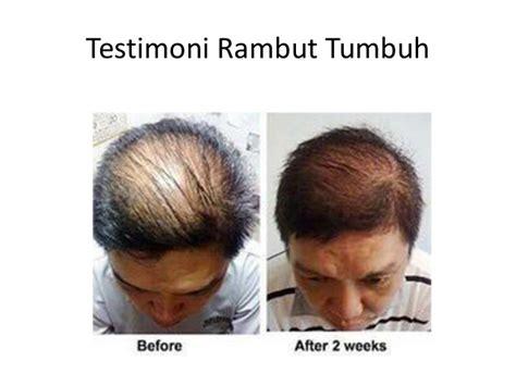 Suplemen Rambut Jual Suplemen Yang Bagus Untuk Rambut Rontok Hubungi 62