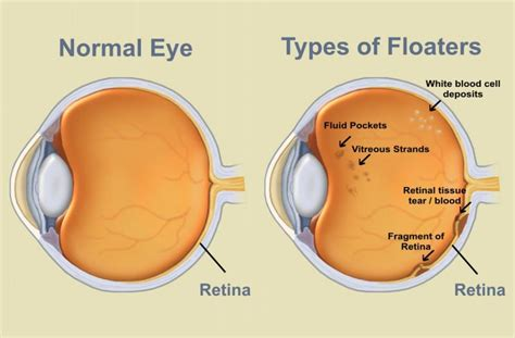 Flashes Of Light In The Eye by St S Eye Institute Flashes Floaters