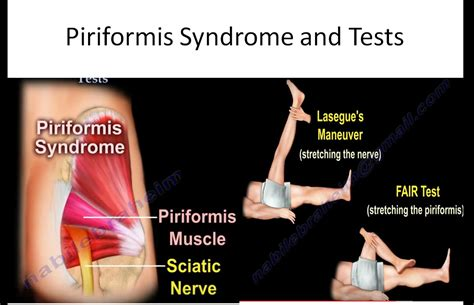 test piriforme piriformis and tests orthopaedicprinciples