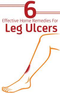 leg home remedies 6 effective home remedies for leg ulcers