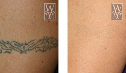 tattoo removal baton rouge permanent makeup removal baton fay