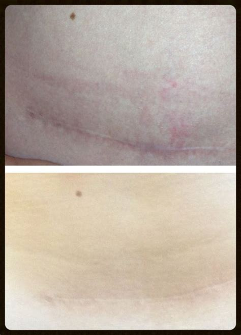 c section scar fade c section scar fading with neriumad real results www