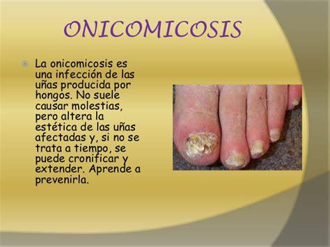 como decorarte las uñas delos pies enfermedades de la u 241 a