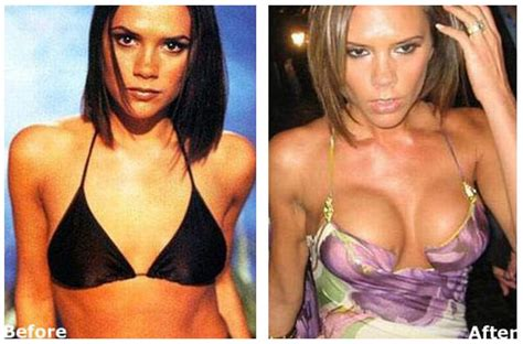 Plastic Surgery Before And After: Victoria Beckham Plastic