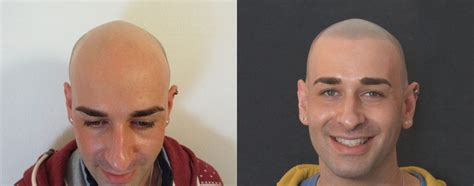 pics of scalp micropigmentation on people with long hair the hair tattoo a k a scalp micropigmentation should you