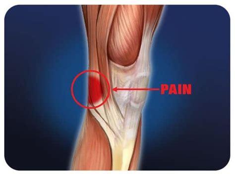dolore al ginocchio laterale interno senza gonfiore dolore dietro al ginocchio le possibili cause e il trattamento