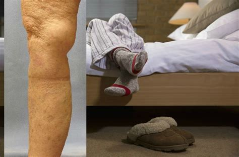 legs ache at night in bed do you feel leg pain at night or when lying down in bed