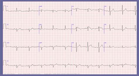 brugada pattern types 23 best images about interesting ecgs on pinterest