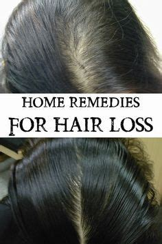 home remedies for hair loss for over 50 1000 images about a better me on pinterest coconut oil