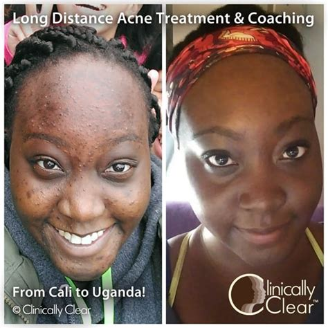 scar removal cream for african americans long distance acne client who uses our products in uganda