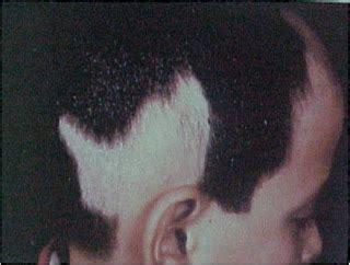 Salep Vitiligo kelainan pada rambut two glasses