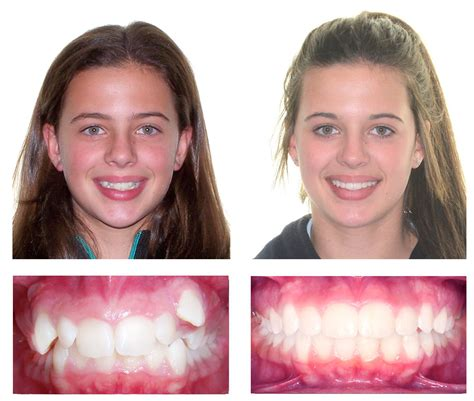 before and photos before and after braces orthodontics manuka embrace