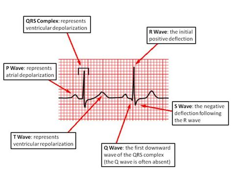 ecg pattern meaning waves and complexes