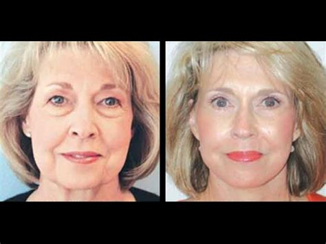 total transformation prior to the makeover this master my dream team docs total makeover
